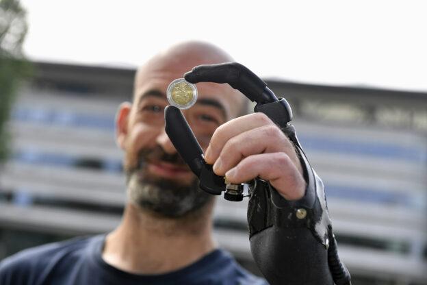 Una protesi bionica dopo l'incidente sul lavoro: la storia dell'astigiano Fabio Meneghel